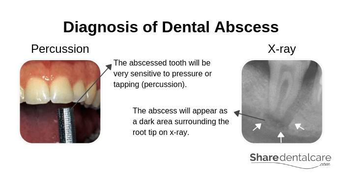 Dental Abscess: Symptoms Causes & Treatment [Pictures]