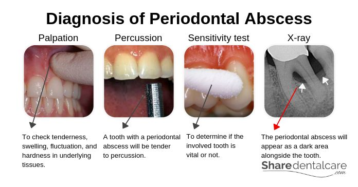 Periodontal Abscess: Symptoms Causes & Treatment [Pictures]