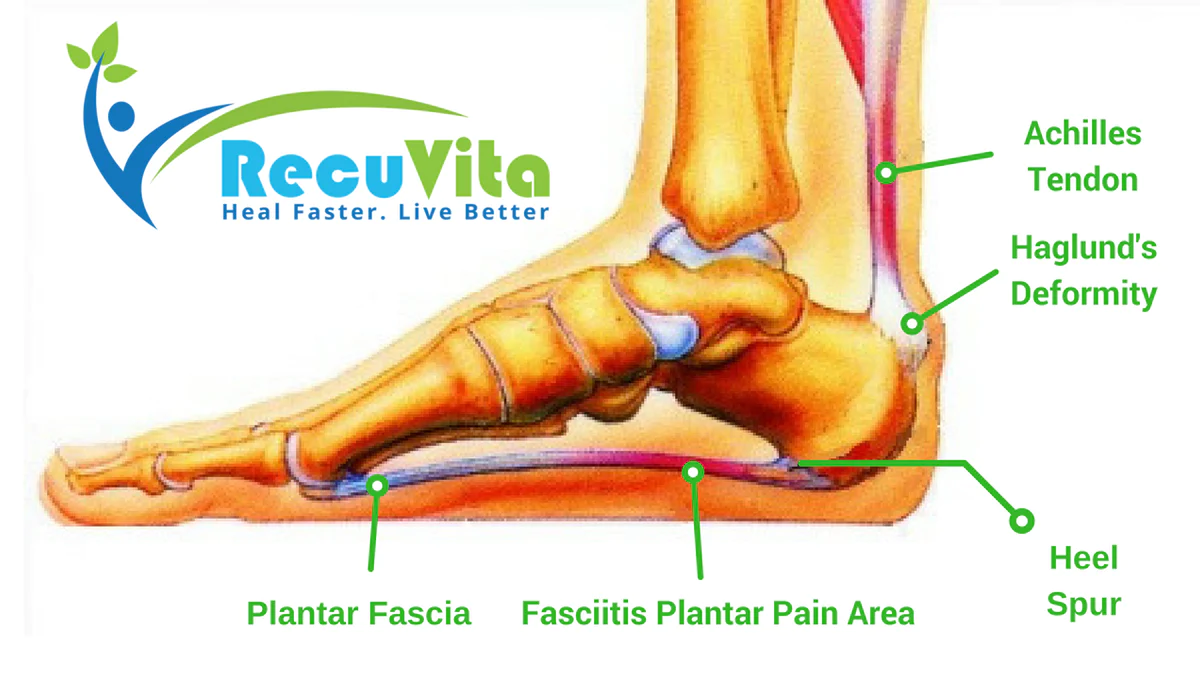 medium resolution of heel spur plantar fasciitis what is it and how to treat it
