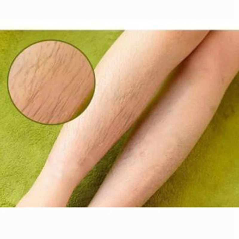 natural permanent hair removal