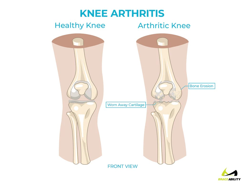 small resolution of symptoms of arthritis in the back of your knee