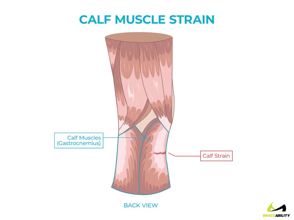 hight resolution of  anatomy of a calf muscle strain or gastrocnemius tendonitis