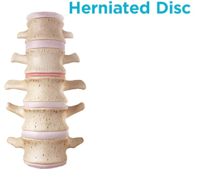 What A Herniated Disc In Your Spine Looks Like