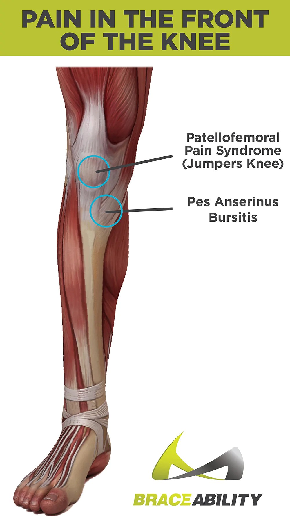 hight resolution of types of pain you feel in the front of your knee patellofemoral pain syndrome