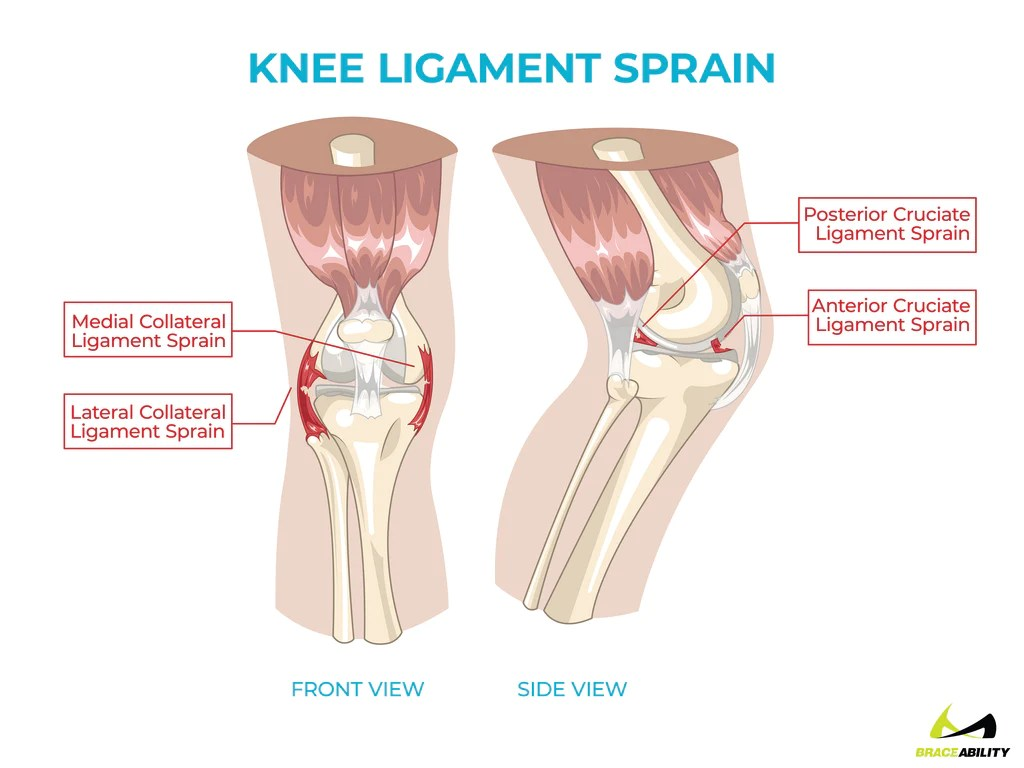 anatomy of knee ligament sprains causing back of knee pain [ 1024 x 768 Pixel ]