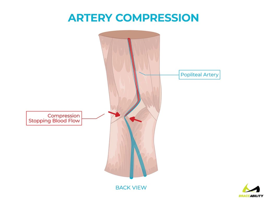 anatomy of compression on the popliteal artery causing back of knee pain [ 1024 x 768 Pixel ]