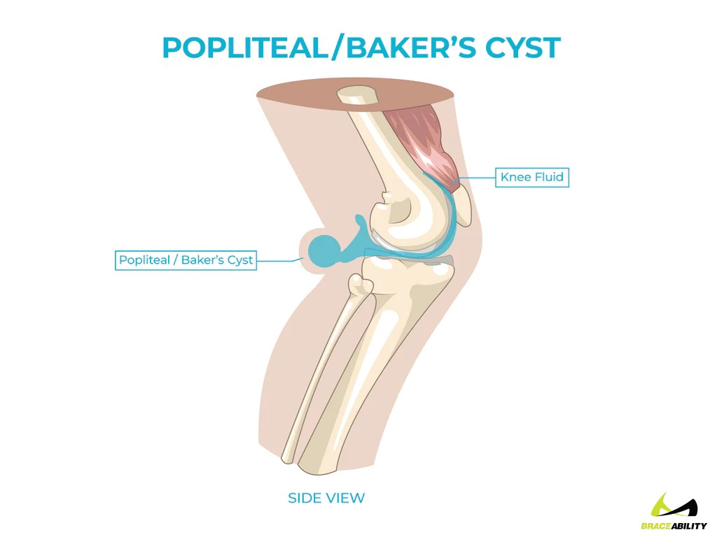 medium resolution of  anatomy of a popliteal or baker s cyst in back of the knee