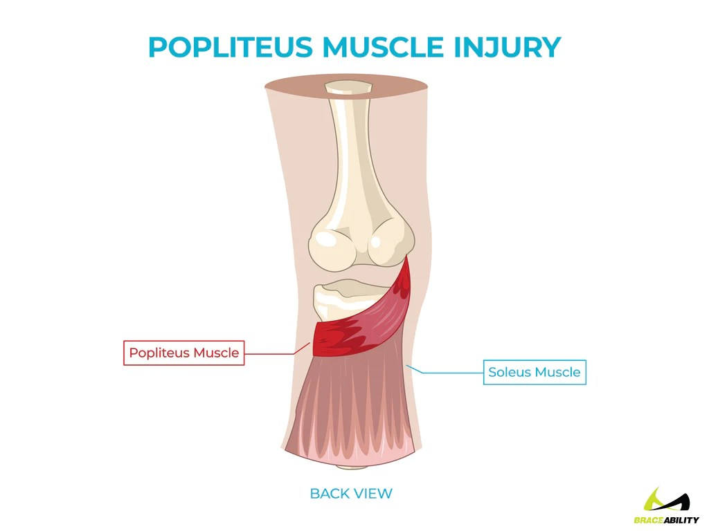 hight resolution of  anatomy of a popliteus muscle injury and pain behind the knee