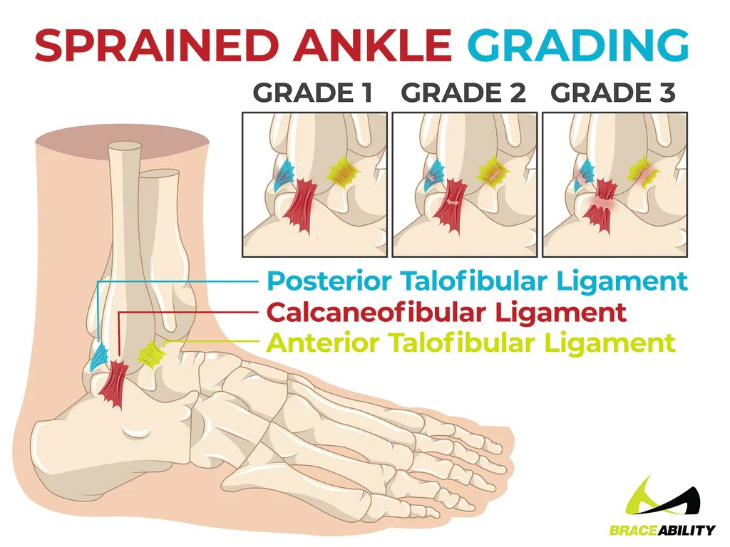 A Sprain. a Twist. or a Roll? Decipher Your Ankle Injury.