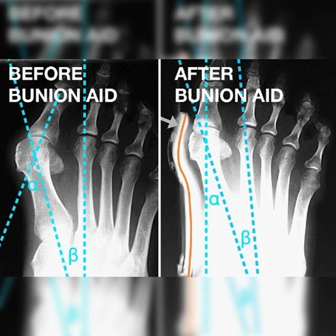 hight resolution of bunion corrector 1 pair