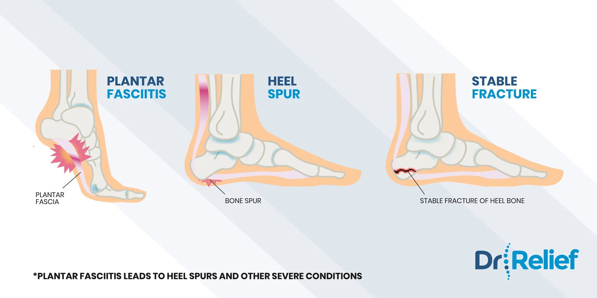 here we will discuss the different types of foot pain associated with the heel ball of foot arch toes and the outer edge of the foot  [ 2048 x 1024 Pixel ]