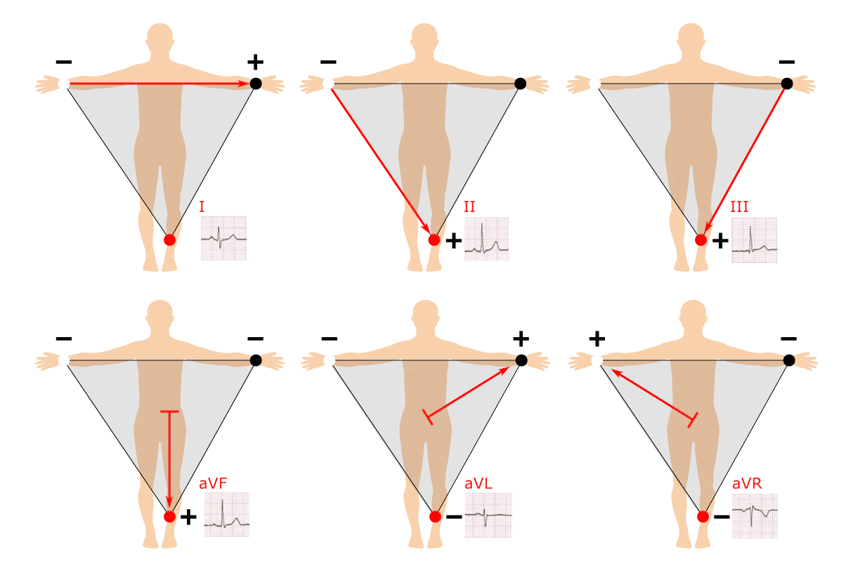 hight resolution of the einthoven s triangle explains why there are 6 frontal leads when there are just 4 limb electrodes
