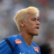 footballers with hair loss