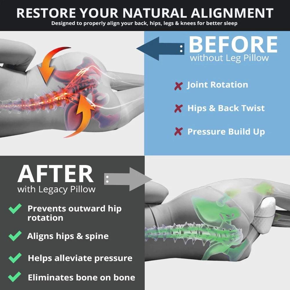 remedy health orthopedic leg pillow