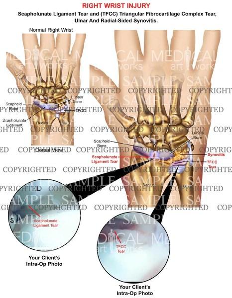 Peripheral Triangular Fibrocartilage Complex Tear Right Wrist