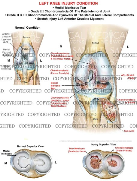 Anterior Compartment Knee