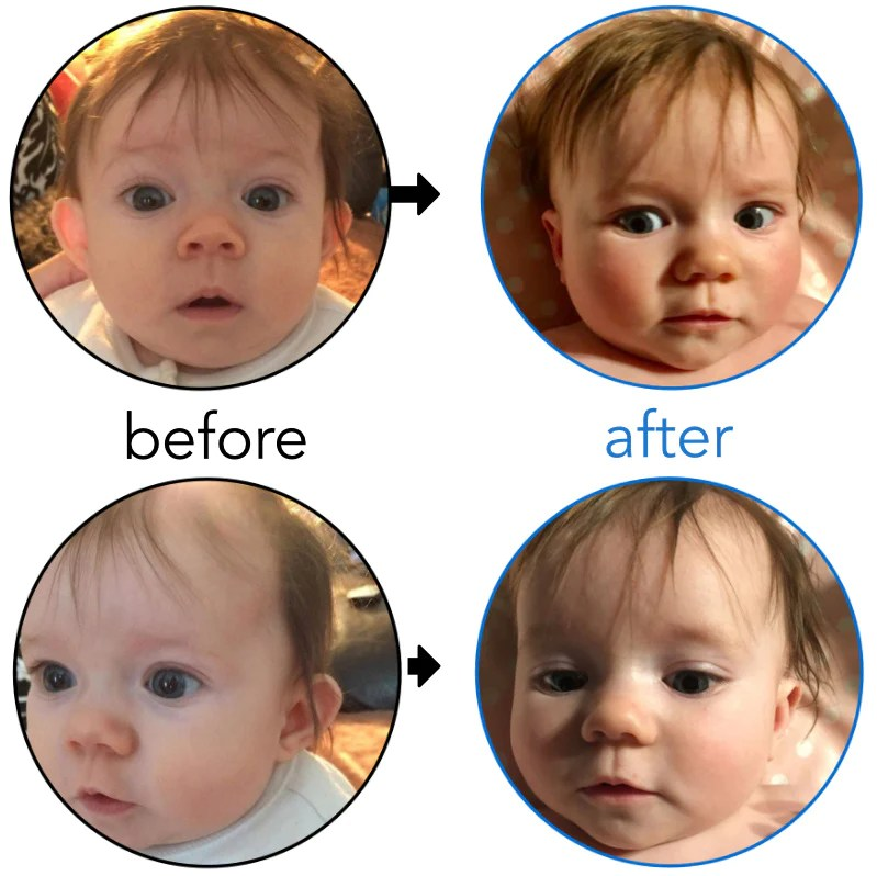 Before & Afters | EarBuddies™ | Permanent Solution to ...