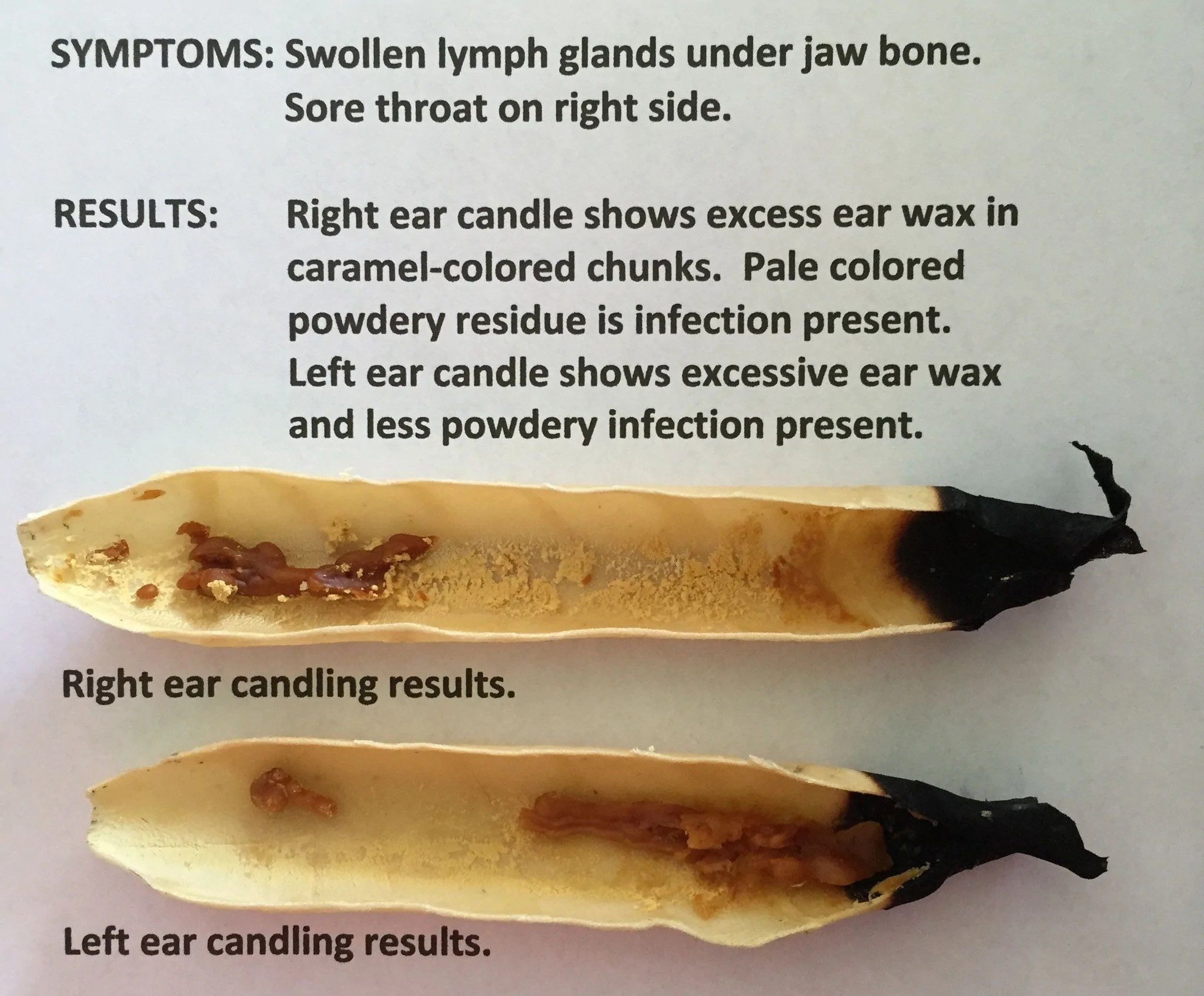 medium resolution of  load image into gallery viewer natural ear candling therapy set