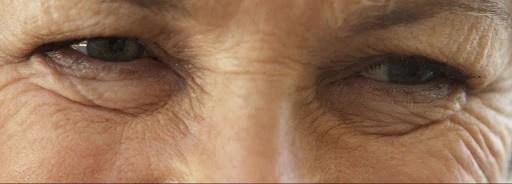 woman with eye wrinkles