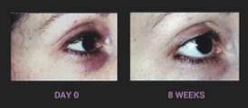 Regu-Age reduces visibility of dark circles