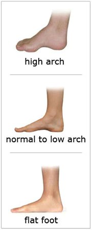 Arch Pain
