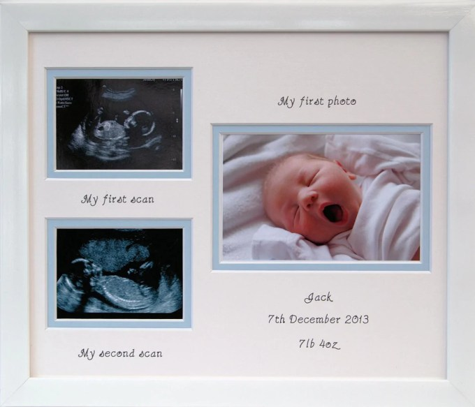 My First Baby Scan Photo Frame | Viewframes.org