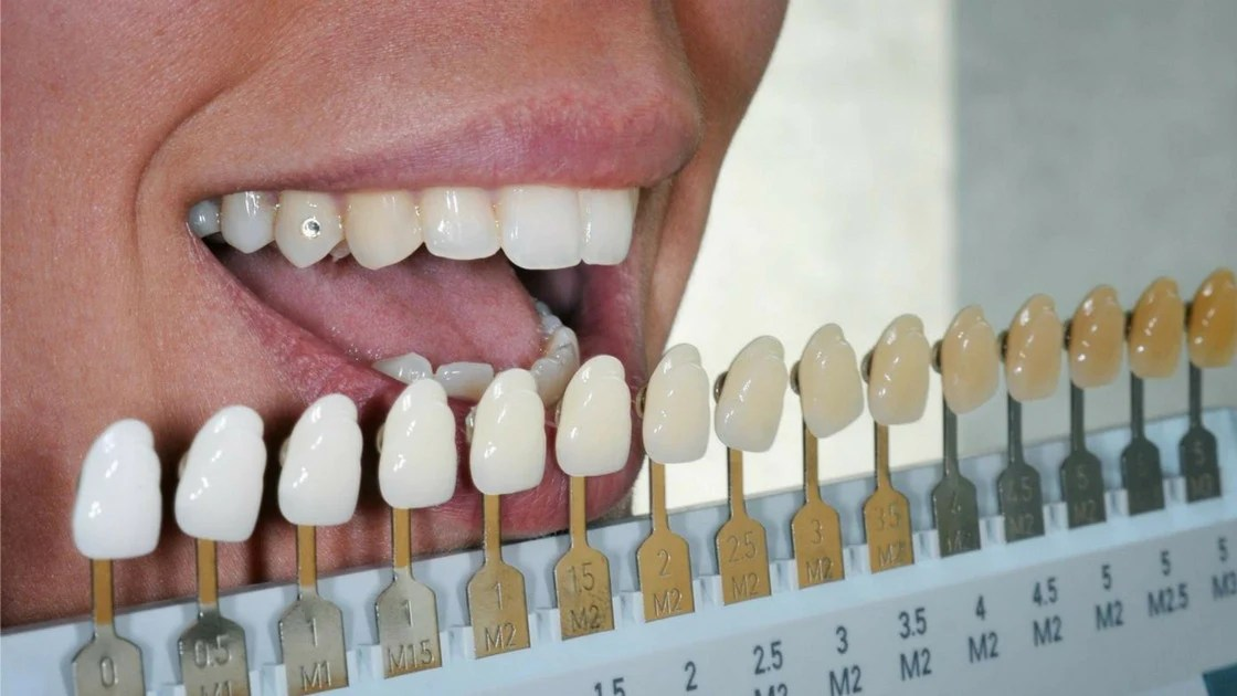 also how to determine your tooth shade  lumineux oral essentials rh oralessentials