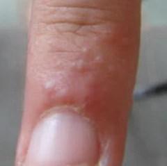 Pompholyx Eczema Eczema Life