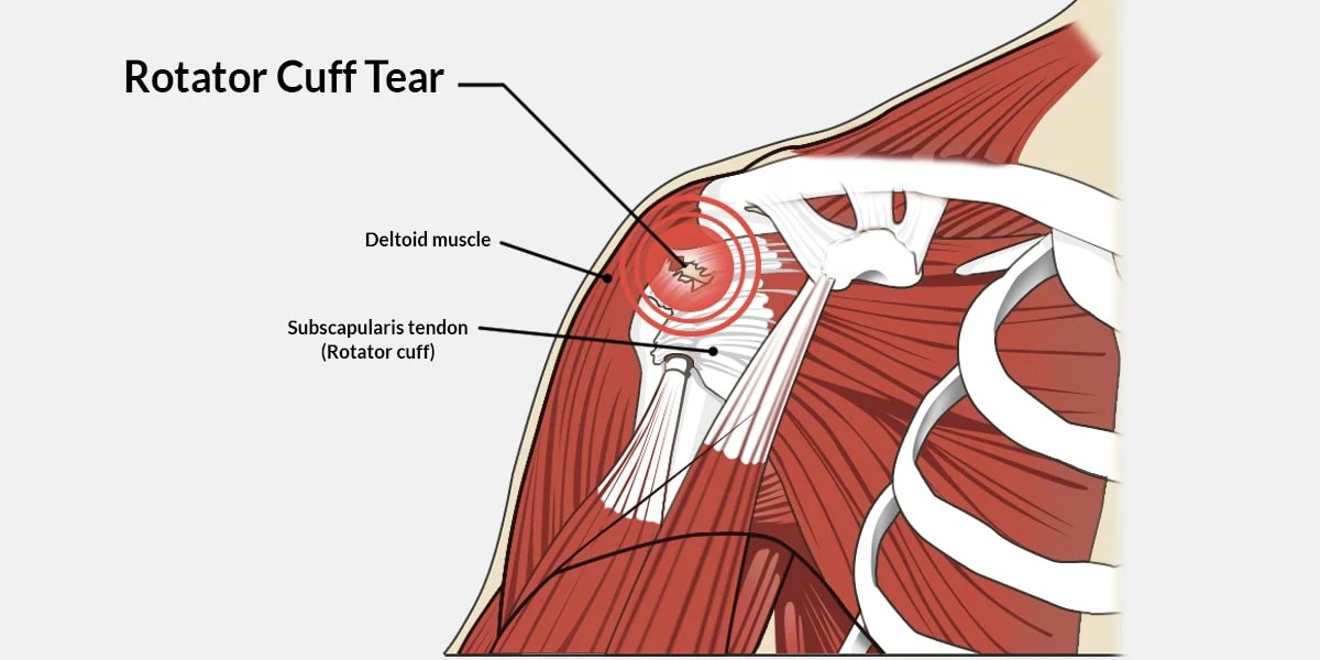 Rotator Cuff Tear – The Complete Injury Guide  Vive Health