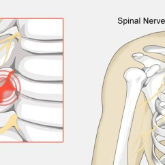 Nerves In Neck And Shoulder Diagram Tvss Wiring Pinched Nerve The Complete Injury Guide Vive Health
