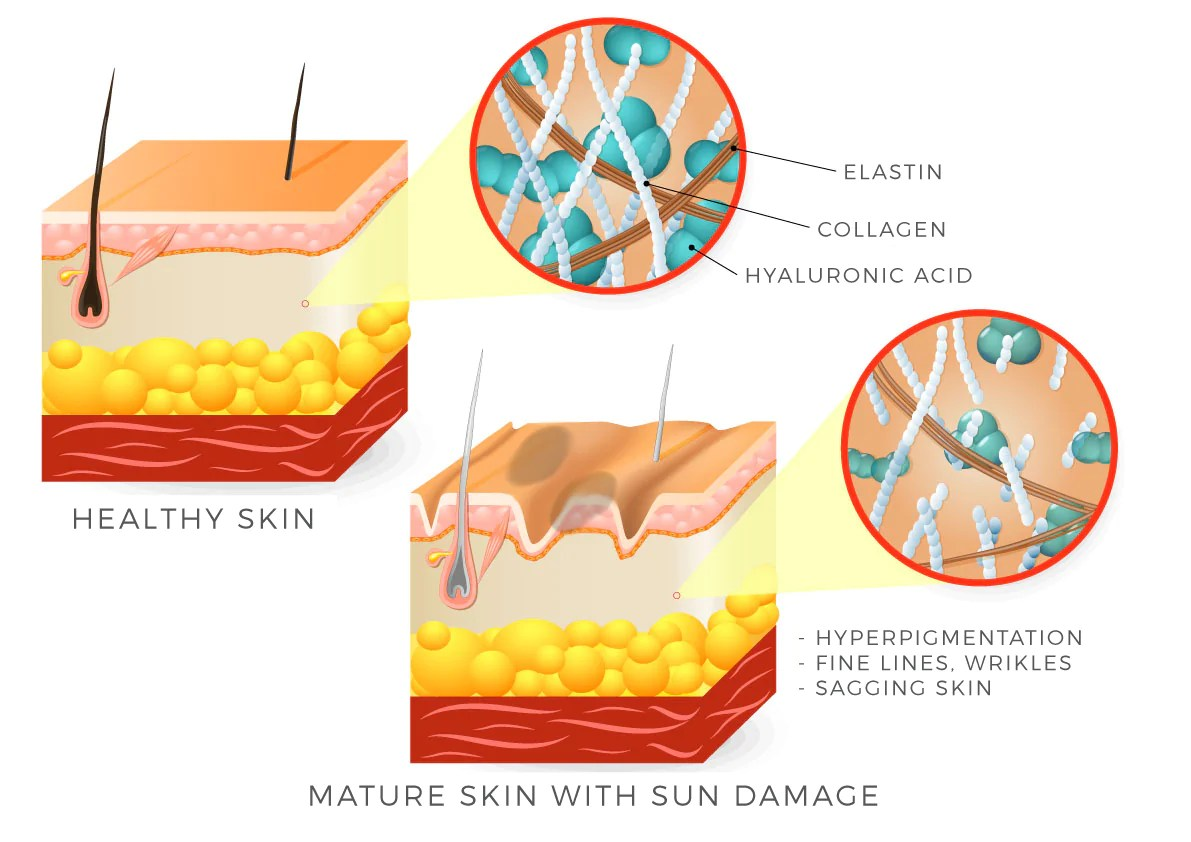 hight resolution of uneven skin tone sun damage