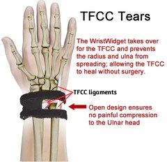 TFCC tear - Symptoms Treatment & Recovery without ...