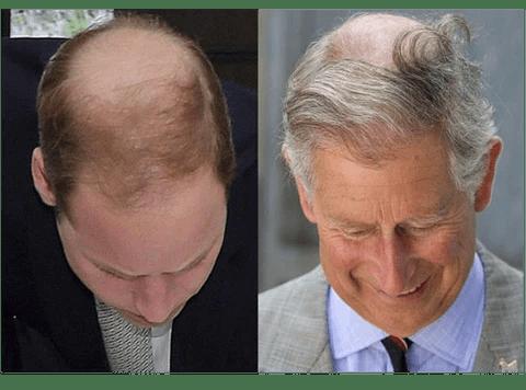 男士脫髮的五大原因 – SWAG HAIR