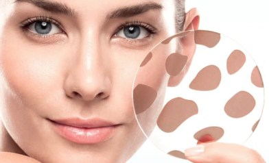 how-to-manage-hyperpigmentation-on-the-face