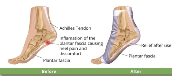 How Can I Treat Plantar Fasciitis At Home Not Going to Doctor
