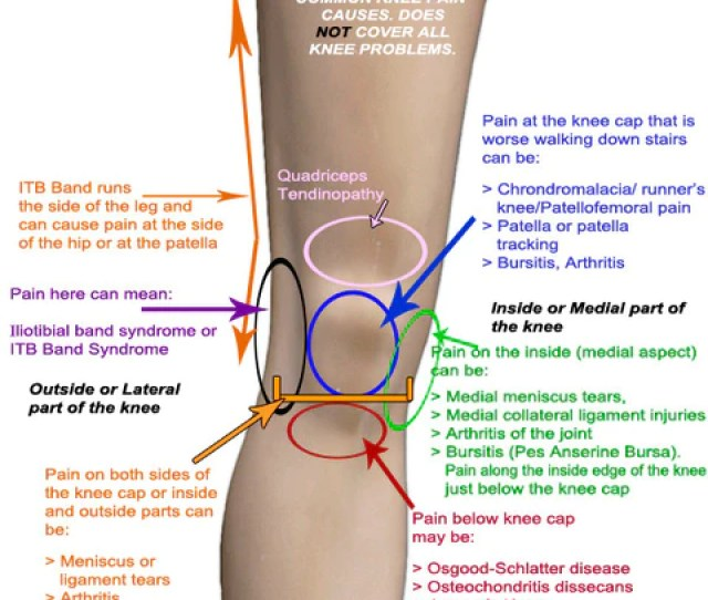 Therafit Read Me If You Have Knee Pain