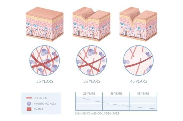 Disminución de los niveles de colágeno en la piel