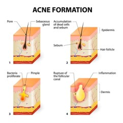 What Causes Acne Diagram Two Stages Of Photosynthesis Vs Pimples Are They The Same Thing Bioclarity Simply Put And Caused By Clogged Pores Oil Producing Glands Called Sebaceous Connected To Your Secrete That