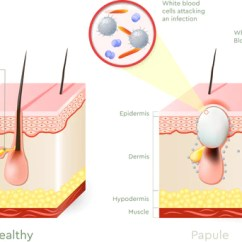 What Causes Acne Diagram 2 Way Light Switch Wiring Uk Type Of Do You Have Different Types Pimples Bioclarity Pustules