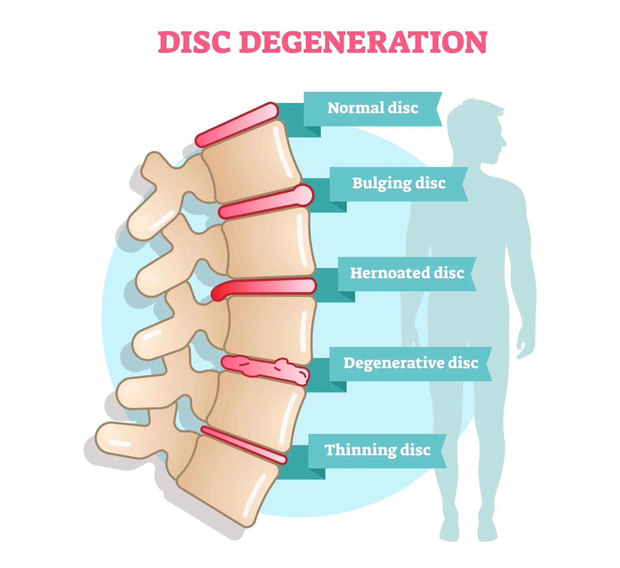 medium resolution of 12 ce hour medical massage back shoulders spine