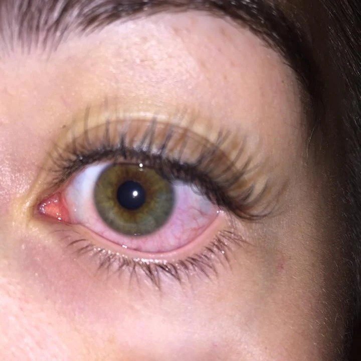 Are You Allergic To Eyelash Extensions Lash Affair