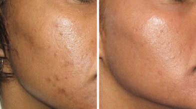 buy-online-anti-pigmentation-cream