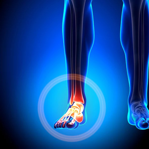 Lisfranc Injury Injuries KneeRover