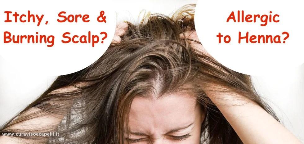allergic to henna hair