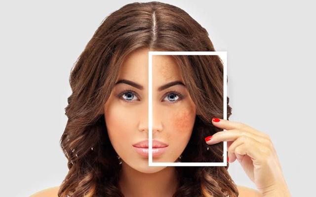 How To Get Rid Of Hyperpigmentation Acne – SkinKraft