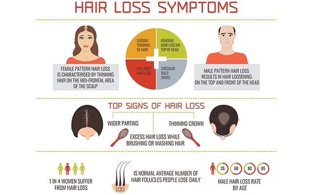 The Link Between Testosterone And Hair Loss In Men And Women