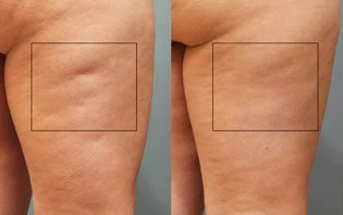 subcision surgery is one of the best cellulite treatment options