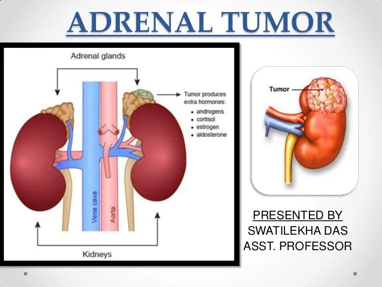 Adrenal tumor classification management - easy explanation
