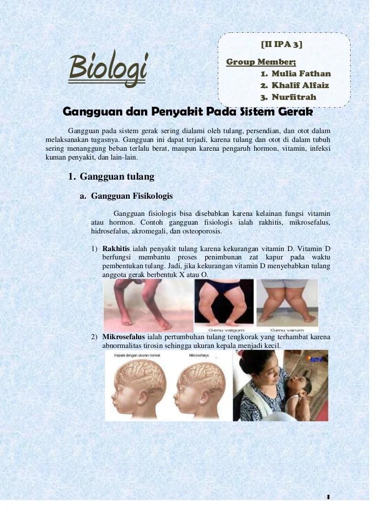 3 Kelainan Pada Tulang : kelainan, tulang, Biologi, Gangguan, Penyakit, Sistem, Gerak