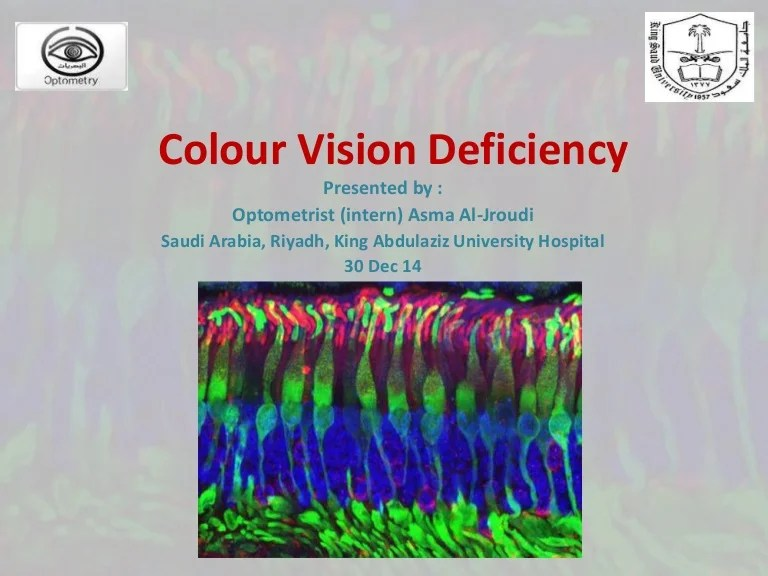 also color vision deficiency and ishihara   test rh slideshare